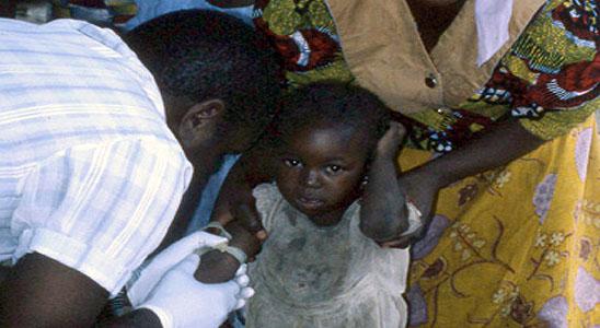 Lassa Fever: F.G. Promises to Curb Spread