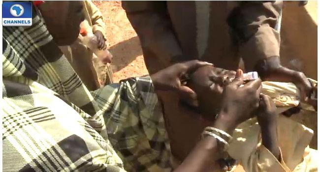 Polio: Kaduna Targets 3 Million Children For Immunisation