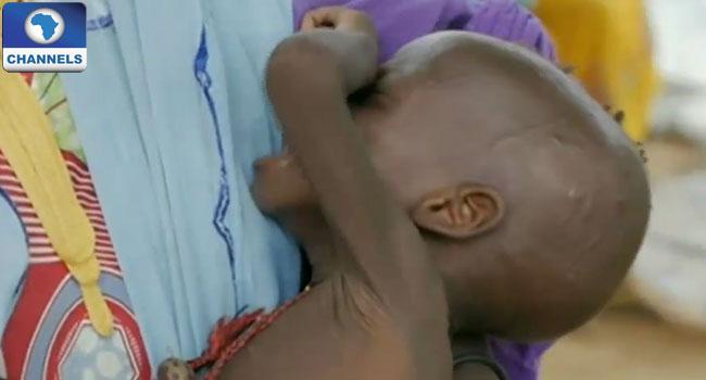 Malnutrition-in-northeast-Nigeria-Unicef