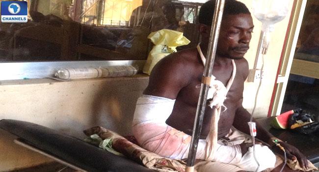 Farmers, Herdsmen Clash In Abia Leaves Scores Hospitalised