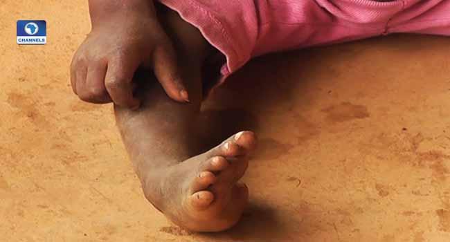 FG Insists No Polio Case Recorded In Cross River