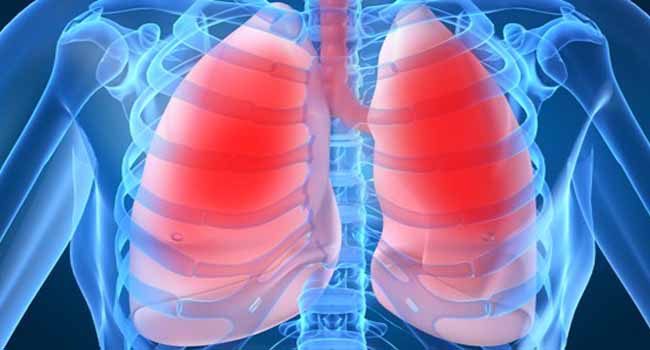Expert Advocates More Measures To Curb Tuberculosis
