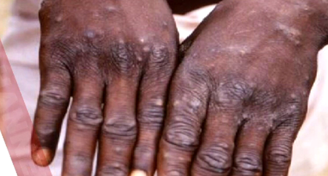 Benue State Government on Wednesday deployed medical personnel to carry out necessary investigation on the suspected cases of monkeypox reported in Gboko and Vandeikya.