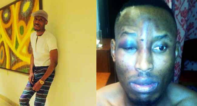 Mr 2Kay Robbed At Gun Point In Hotel Room