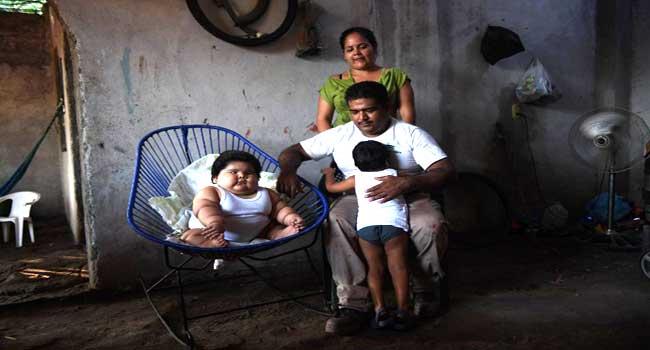 Toddler Weighing 28 Kilos Baffles Doctors