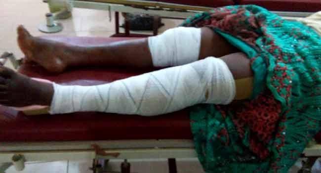 At Least 19 JOHESU Members Injured In Road Accident