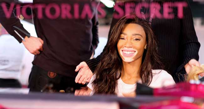 Winnie Harlow Makes History As First Model With Vitiligo To Walk Victoria's Secret Runway
