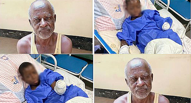 Attempted Homicide: Police Arrest Herbalist As Teenager's Left Hand Is Amputated In Nasarawa
