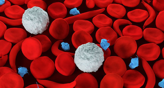 Sickle cell disease is a condition where red cells with Hemoglobin S become distorted and shaped like crescents or sickles. Credit: John Hopkins Medicine
